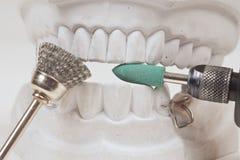 Dental mould Royalty Free Stock Photo