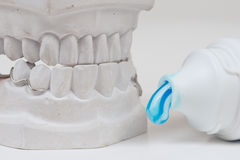 Dental mould Royalty Free Stock Images