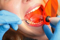 Dental obturation Royalty Free Stock Images