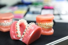 Dental or orthodontic tools, denture closeup. Dentist cabinet, stomatology. Tooth care, mouth hygiene Stock Photography