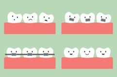 Dental orthodontics treatment with teeth braces. Tooth cartoon vector, dental orthodontics treatment with teeth braces Stock Photography