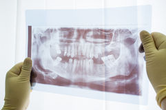 Dental panoramic x-ray of jaw close up Stock Photography