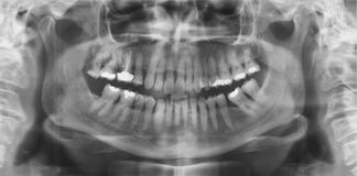 Dental panoramic Stock Photo