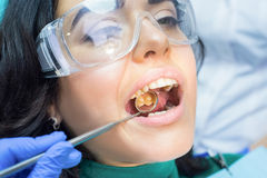 Dental patient and concave mirror. Royalty Free Stock Photos