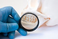 Dental, periodontal and gum disease diagnosis and treatments concept photo. Dentist or dental hygienist with magnifying glass exam. Ines teeth of skull royalty free stock photography