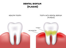 Dental plaque. With inflammation and healthy tooth on a white background Royalty Free Stock Photo