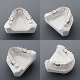 Dental plaster mold. Mold of  human teeth,white Plaster Stock Photo