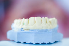 Dental plaster mold Stock Images