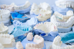 Dental plaster moulds and imprints Royalty Free Stock Photography