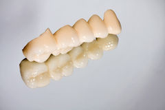 Dental porcelain bridge Royalty Free Stock Photography