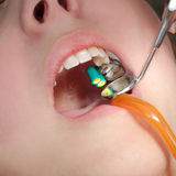 Dental procedure, drilling tooth. Close up of mouth and tools, filling of tooth cavity, real people royalty free stock photography