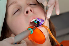 Dental procedure, laser Royalty Free Stock Images