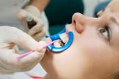 Dental procedure of teeth Stock Images