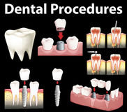 Dental procedures of making fake tooth Stock Photography