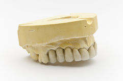 Dental prosthesis Royalty Free Stock Photo