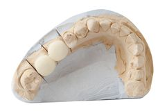 Dental Prosthesis Stock Photography