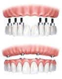 Dental prosthesis stock illustration