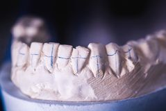 Dental Prosthesis Prosthetic Laboratory Royalty Free Stock Photography