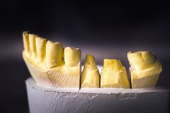 Dental Prosthesis Prosthetic Laboratory Stock Image