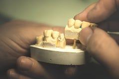 Dental Prosthesis Stock Photography