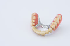 Dental prosthesis. With central metallic support Stock Images
