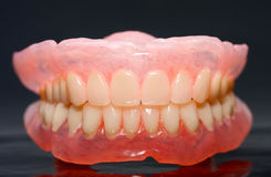 Dental prosthesis Royalty Free Stock Photos