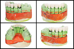 Dental prosthesis model collage Royalty Free Stock Images