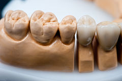 Dental prosthesis model with teeth implanted Royalty Free Stock Images