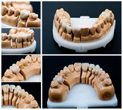 Dental prosthesis models collage Royalty Free Stock Photos