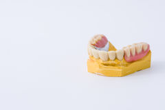 Dental prosthesis over a mold. With white background Royalty Free Stock Photo