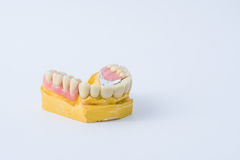 Dental prosthesis over a mold. With white background Stock Photography
