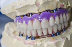 Dental prosthesis porcelain teeth. Royalty Free Stock Image