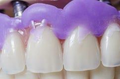 Dental prosthesis porcelain teeth. Stock Images