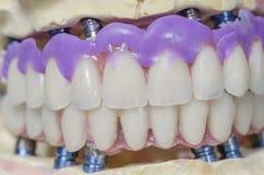 Dental prosthesis porcelain teeth. Royalty Free Stock Image