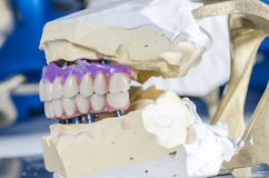Dental prosthesis porcelain teeth. Stock Images