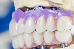 Dental prosthesis porcelain teeth. Stock Photo