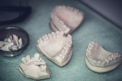 Dental Prosthesis Prosthetic Laboratory Royalty Free Stock Photo