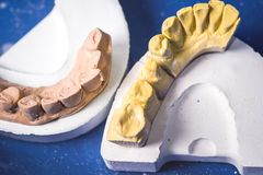 Dental Prosthesis Prosthetic Laboratory Stock Images