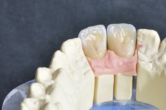 Dental prosthesis, upper incisors Royalty Free Stock Photo