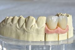 Dental prosthesis, upper incisors. Stratified in lithium disilicate Royalty Free Stock Images