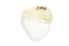 Dental prosthesis Stock Image