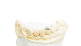 Dental prosthesis Royalty Free Stock Photography