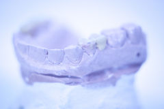Dental prosthetics clay tooth mold Stock Image