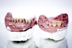 Dental prosthetics clay tooth mold Stock Photography