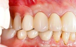 Dental Prosthetics Royalty Free Stock Images