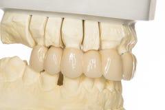 Dental prothesis Royalty Free Stock Photo