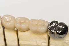 Dental prothesis Royalty Free Stock Image