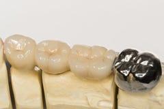 Dental prothesis Royalty Free Stock Image