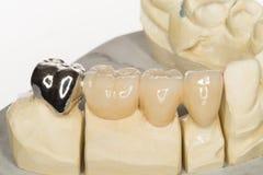 Dental prothesis Stock Image