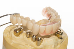 Dental prothesis Stock Photography
